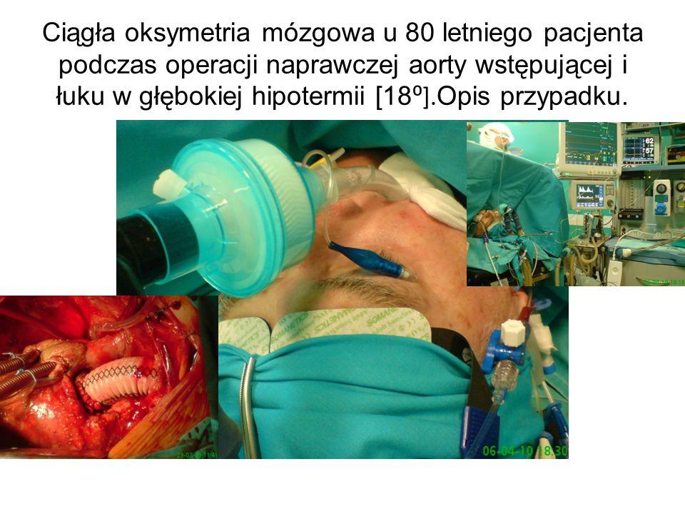 Ciągła oksymetria mózgowa u 80 letniego pacjenta podczas operacji naprawczej aorty wstępującej i łuku w głębokiej hipotermii [18⁰].Opis przypadku.
